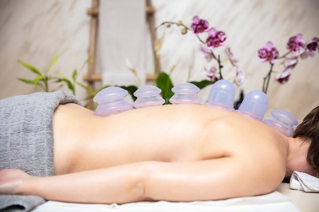 カッピング療法の伝統的な方法の一部として女性患者の背中の皮膚に適用されるカップ