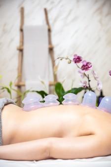 컵 치료의 전통적인 방법의 일부로 여성 환자의 등 피부에 적용된 컵