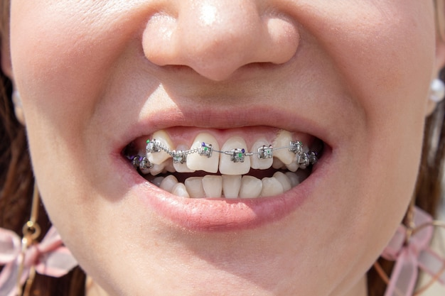 Curved female teeth, after installing braces. close-up of the teeth after treatment at the orthodontist.brasket system in a girl's smiling mouth, macro photography of teeth. braces on the girl's teeth