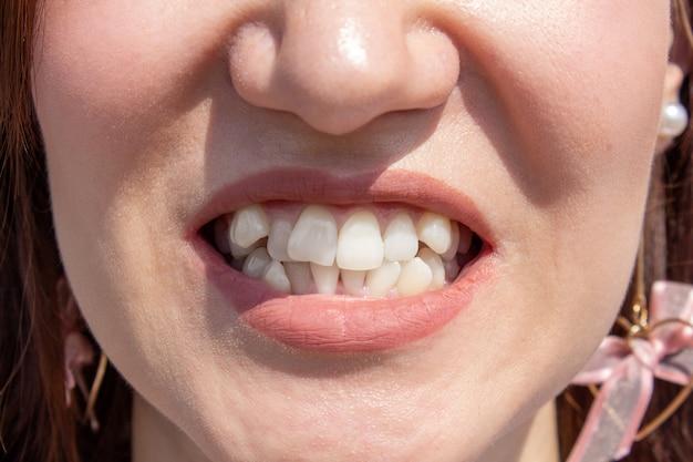교정기를 설치하기 전의 구부러진 여성 치아. 교정 전문의가 치료하기 전 치아 클로즈업