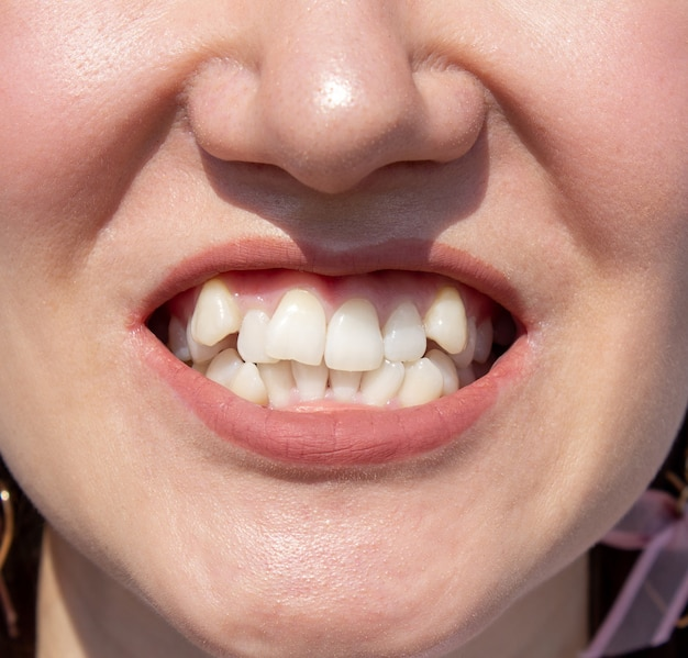 Curved female teeth, before installing braces. close - up of teeth before treatment by an orthodontist