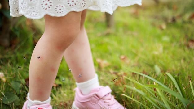 귀여운 아시아 소녀는 야외에서 노는 동안 모기에 물리고 다리에서 피를 빨면서 피부 발진과 알레르기가 있습니다.