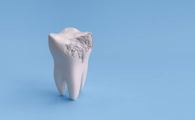 Damaged tooth isolated on blue background with clipping path. 3d render illustration