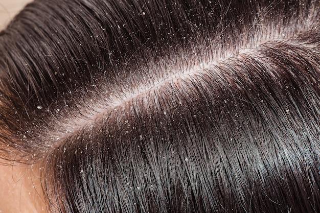 女性の黒い髪のフケ