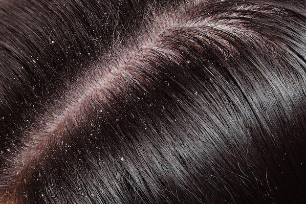 Dandruff on woman's dark hair