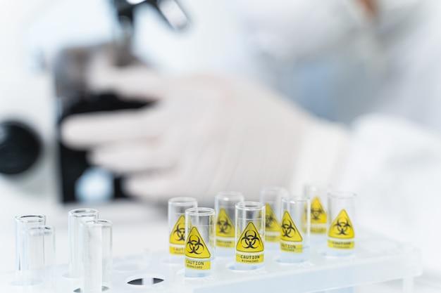 위험한 실험. 항바이러스 백신에서 일하는 동안 현미경을 사용하는 전문 연구원의 실루엣
