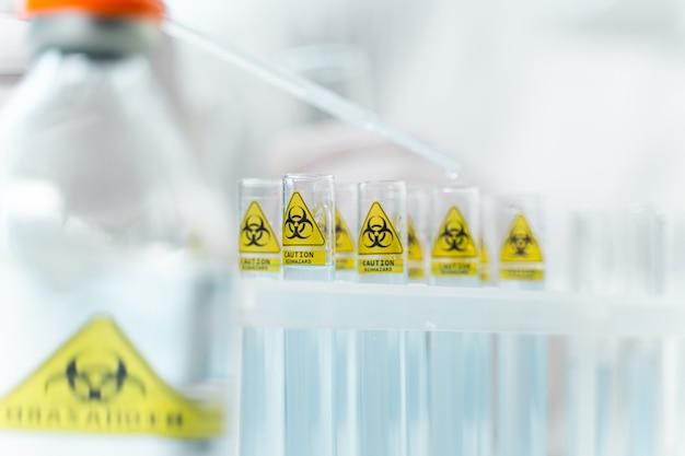 위험한 시약. 유능한 과학자들이 항바이러스 백신, 멸균 의료 장비를 발명하는 전문 실험실 사진