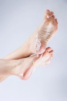 Dehydrated skin female heels
