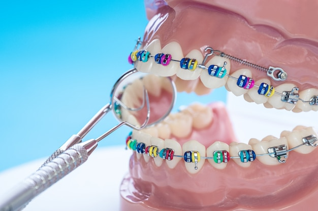 Demonstration teeth model of varieties of orthodontic bracket or brace