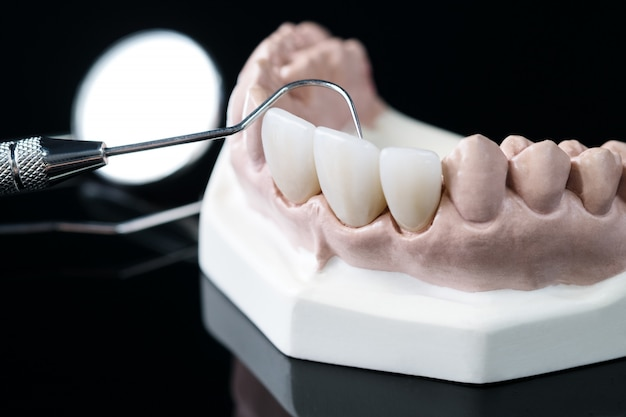 Demonstration teeth model of varieties of prosthodontic bracket or brace