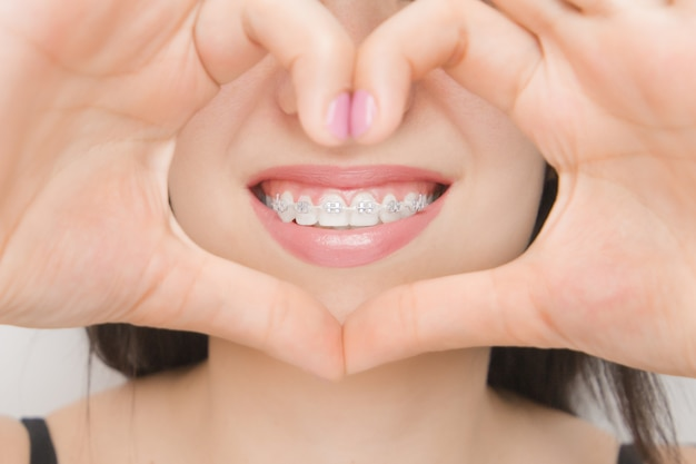 Dental braces in happy woman's mouths through the heart. brackets on the teeth after whitening. self-ligating brackets with metal ties and gray elastics or rubber bands for perfect smile
