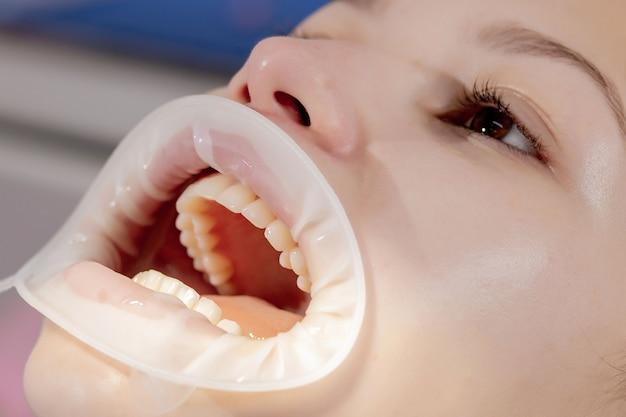 Зубной колпачок. профессиональная чистка межзубного пространства. молодая девушка на приеме у стоматолога. профилактика кариеса и заболеваний десен.