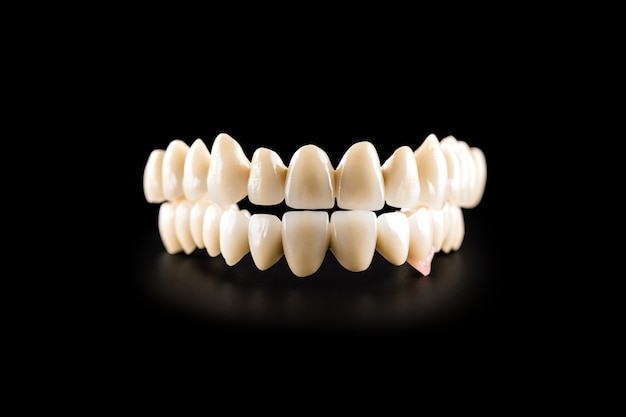 Dental ceramic bridge on isolated black