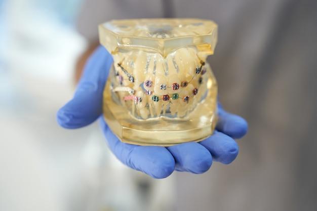 그것에 교정기와 치아 복제를 시연하는 치과 의사