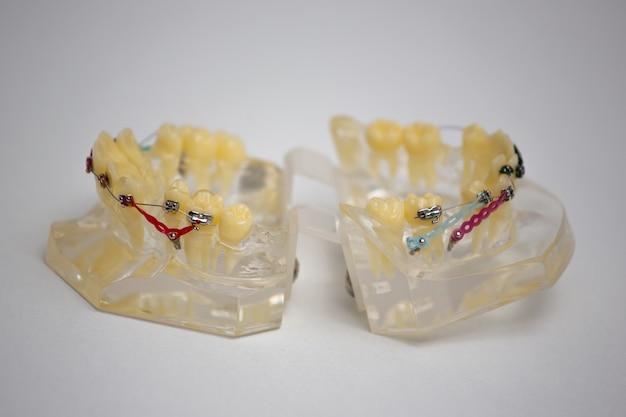 歯科検診中かっこ付きの歯のクリーニングシステムは歯科医を示しています