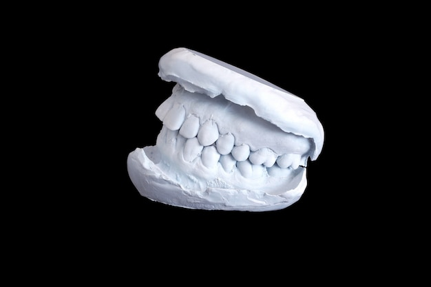 Dental examining, plaster dents model isolated on black