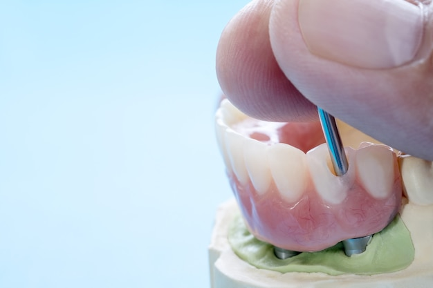 歯科インプラント作業が完了し、すぐに使用できる/歯科インプラントの一時的なアバットメント