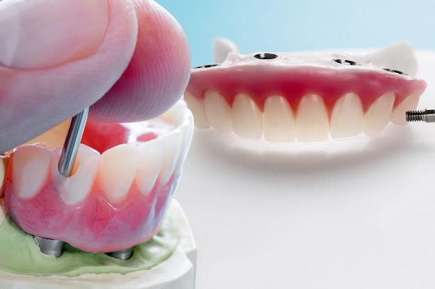 Зубной имплантат завершен и готов к использованию / временный абатмент зубного имплантата