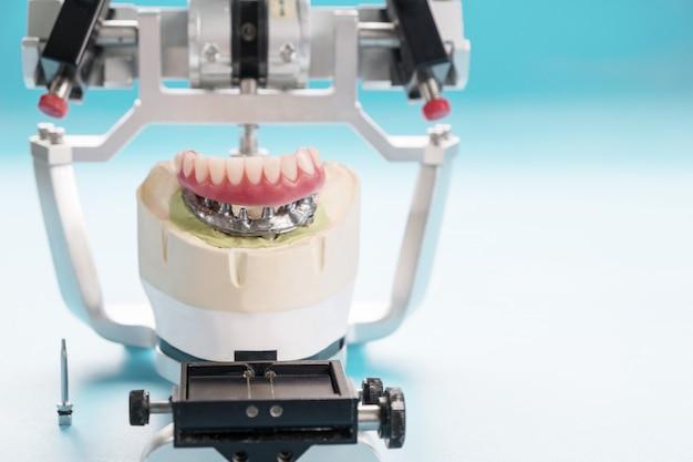 歯科用インプラントの作業が完了し、すぐに使用できます。