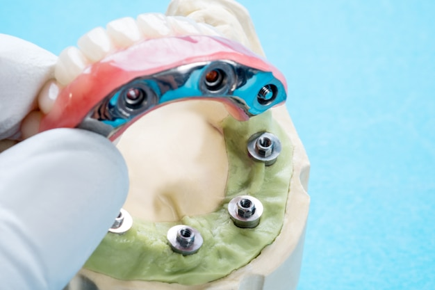Dental implant work is completed and ready to use/ dental implant temporary abutment