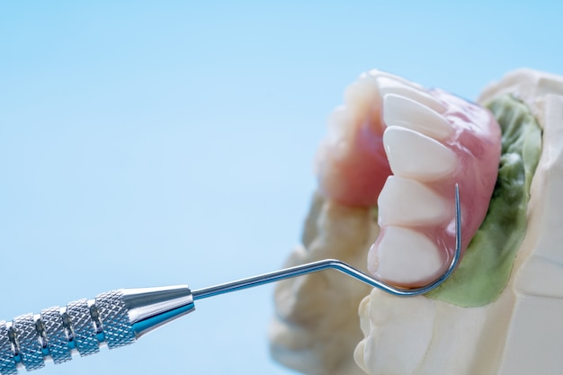 Dental implant work is completed and ready to use.