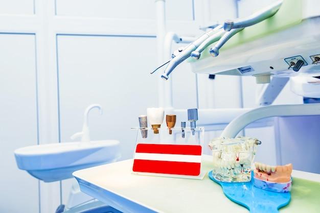 顎モデルを使用したクリニックでの歯科インプラント。