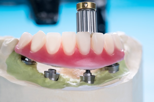 Dental implants supporting overdenture on blue background.