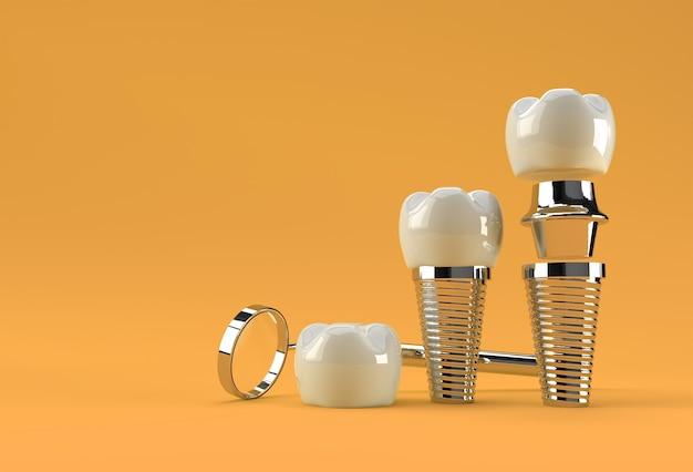 歯科インプラント手術のコンセプト3dレンダリング。