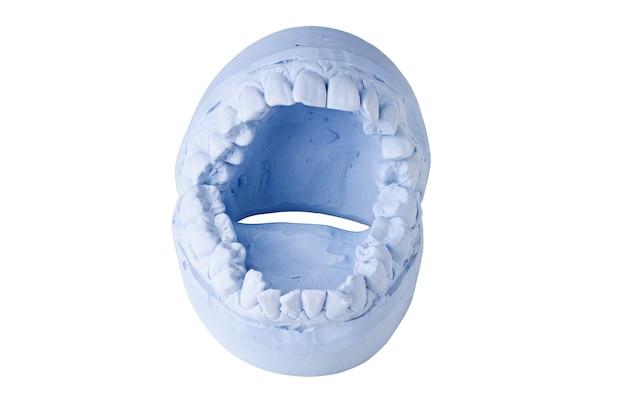 白い背景に分離された歯科印象 Premium写真