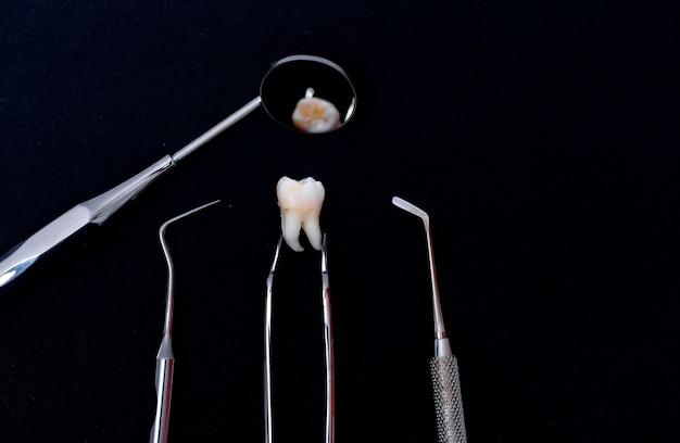 Dental instruments around ceramic tooth model. black background. art photo.