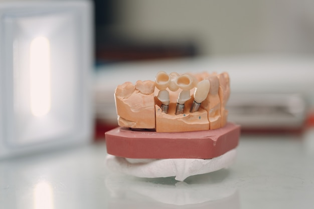 Dental layout of the human jaw with teeth and implants.