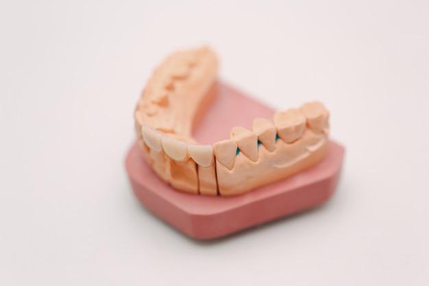 歯とインプラントを備えた人間の顎の歯科レイアウト。
