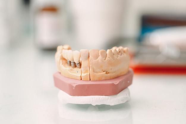 Зубоврачебный макет человеческой челюсти с зубами и имплантатами.
