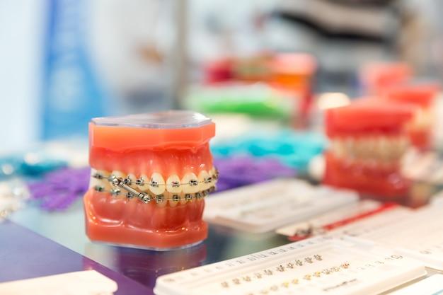 歯科、医療機器、歯科矯正