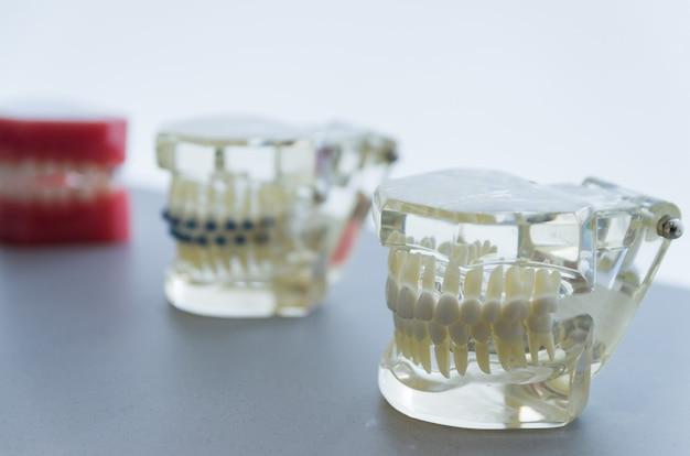 Стоматологическая модель невидимого стоматологического устройства для демонстрации заказчику