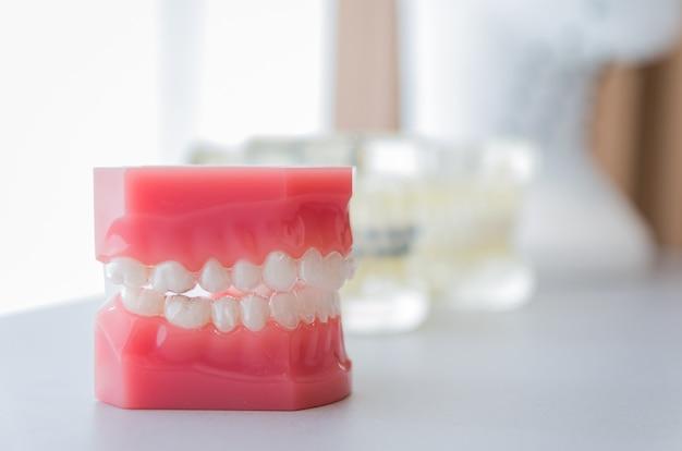 Стоматологическая модель невидимого стоматологического устройства для демонстрации