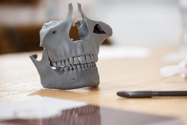 Стоматологическая модель на столе крупным планом 3d модель зубов на столе стоматологическая модель с мини винтом