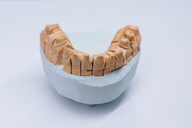 テーブルの上の歯科用金型。石膏モデルの歯の石膏。
