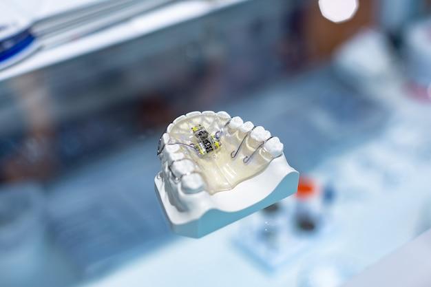 치과 교정 도구. 성형 치아를 만들기위한 다색 장치. 성형 치아.