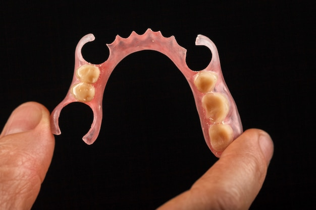 Dental prosthesis in the hand of the dentist.