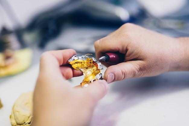 歯科補綴物、補綴物は機能します。義歯に取り組んでいる義肢装具士の手。セレクティブフォーカス。