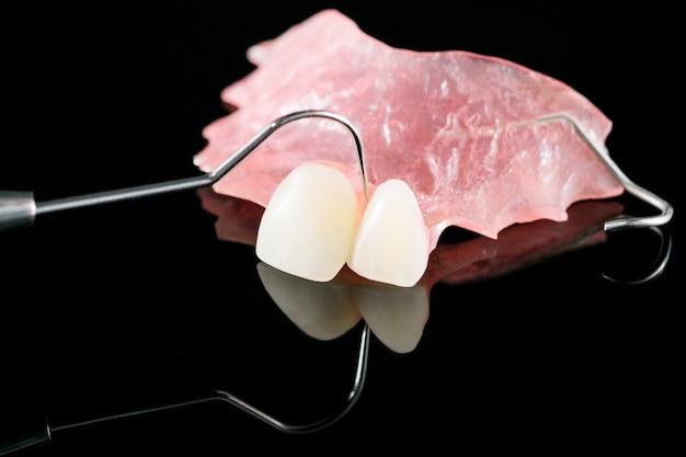 義歯アイソラティック-部分義歯の上側。