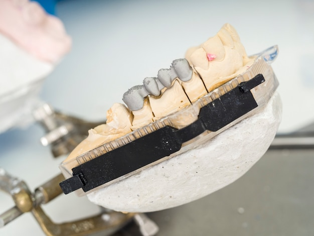 Dental technician is working with articulator in metal structure of a dental crown or brid