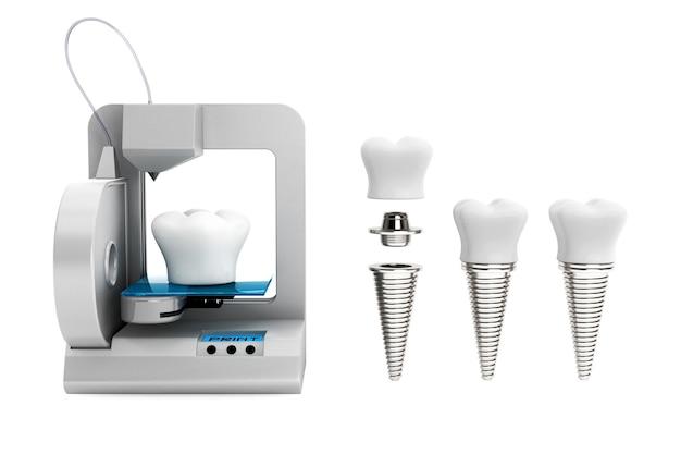 치과 기술 개념입니다. 3d 프린터로 인쇄하는 치아 임플란트