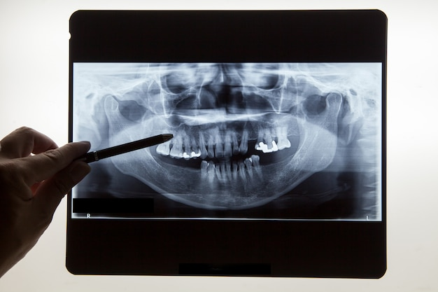 Dental x ray film for dental care concept