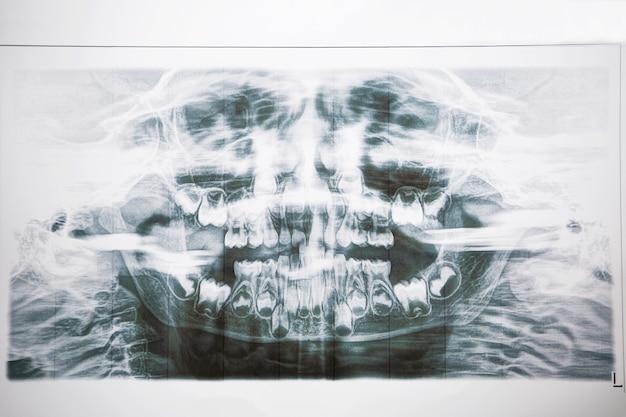 乳児の乳と臼歯の歯科用x線写真。 2列の歯、永久歯に変更します。健康と小児歯科。