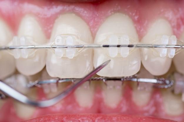 Стоматолог, проверка зубов с керамическими скобками с помощью зонда в стоматологическом кабинете. макро снимок зубов с брекетами