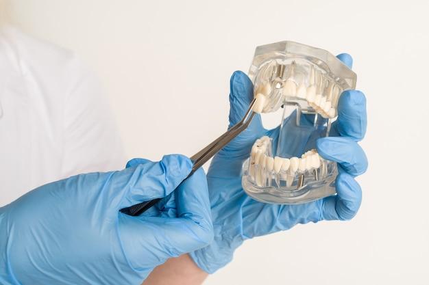 Стоматолог демонстрирует проблемы с зубами на примере расположения челюсти.