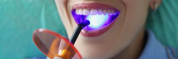 歯科医は患者の歯を硬化光のクローズアップで満たします