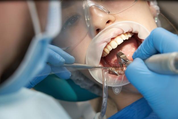 女性患者に歯科治療をしている歯科医。現代の歯科医院で患者の歯を調べる歯科医